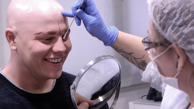 Caso de micropigmentación de cejas en cliente con alopecia universal