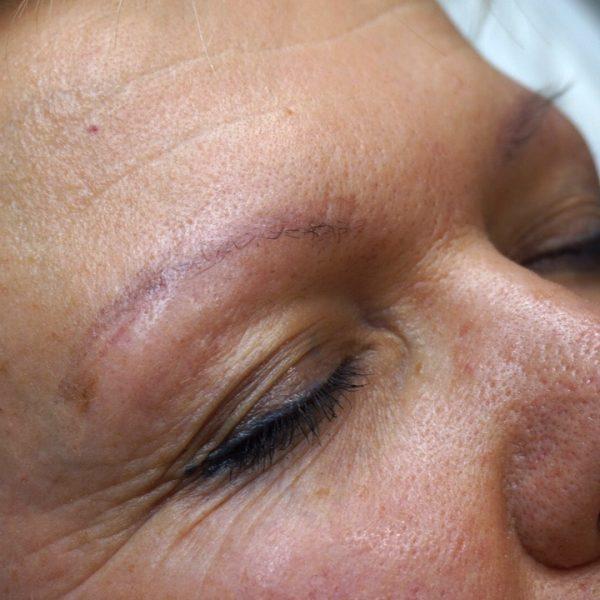 Antes de la micropigmentación de cejas