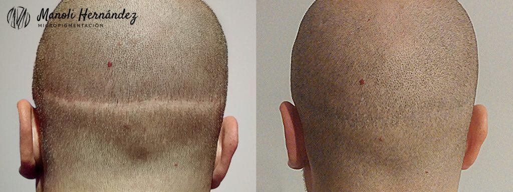 Antes y después de un tratamiento de micropigmentación capilar, para ocultar una cicatriz de trasplante capilar