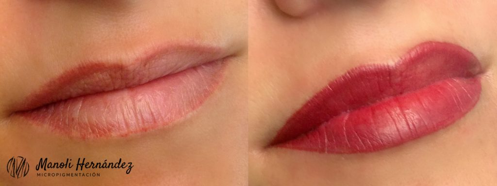 Antes y después de un tratamiento de micropigmentación facial en labios