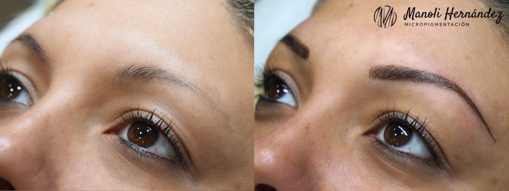 Antes y después de un tratamiento de micropigmentación facial en cejas