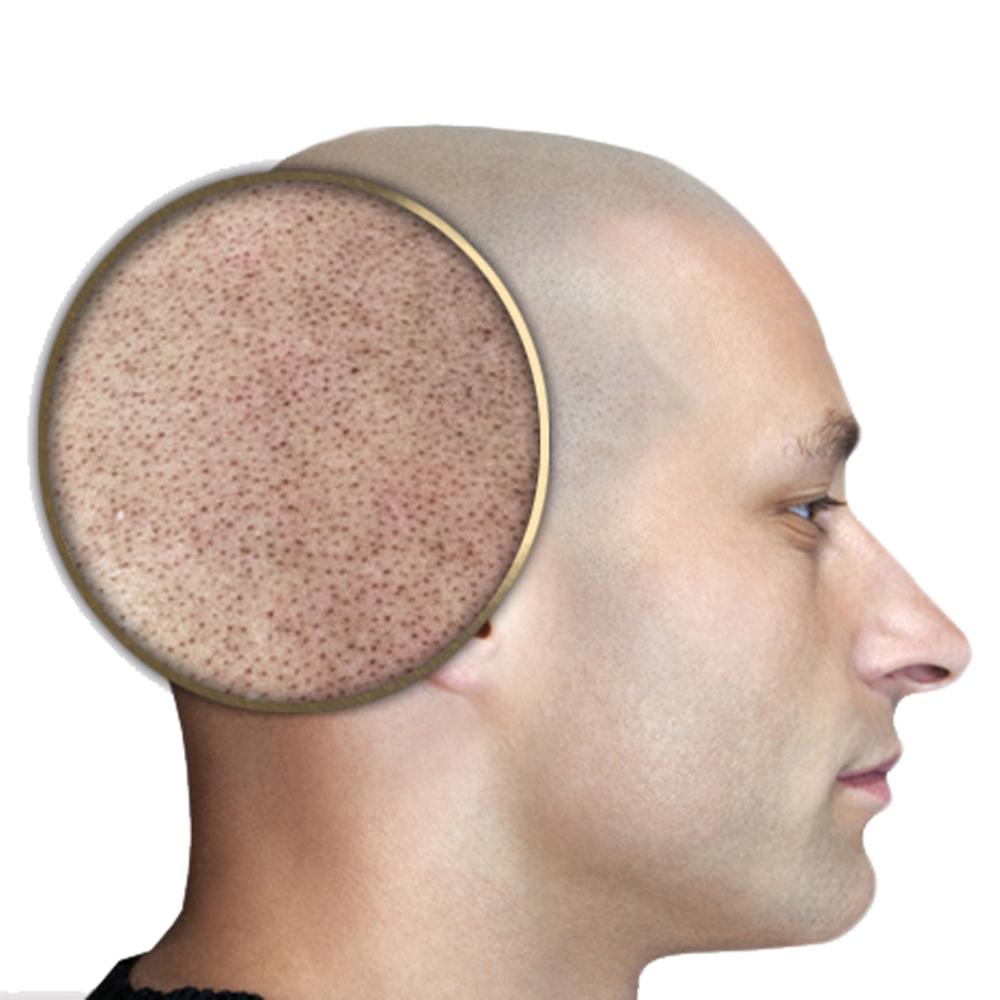 Micropigmentación capilar: creación de una ilusión óptica del pelo rapado