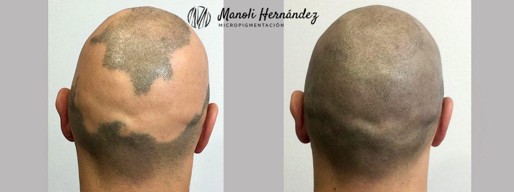 Tratamiento de micropigmentación capilar para tratar alopecia areata