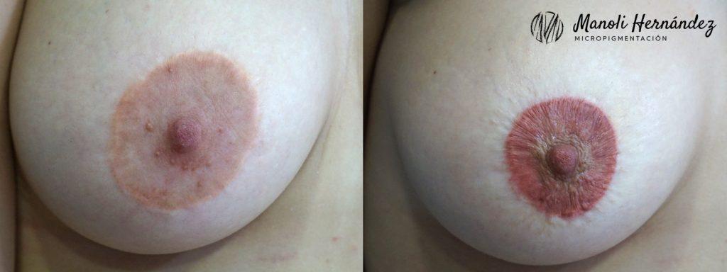 Antes y después de un tratamiento de micropigmentación paramédica en una cicatriz periareolar