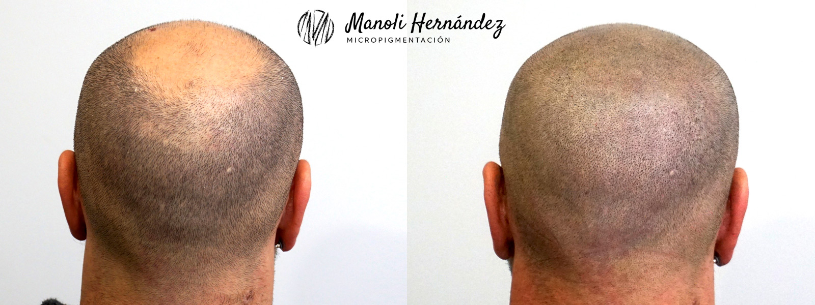 Tratamiento de micropigmentación capilar para tratar alopecia