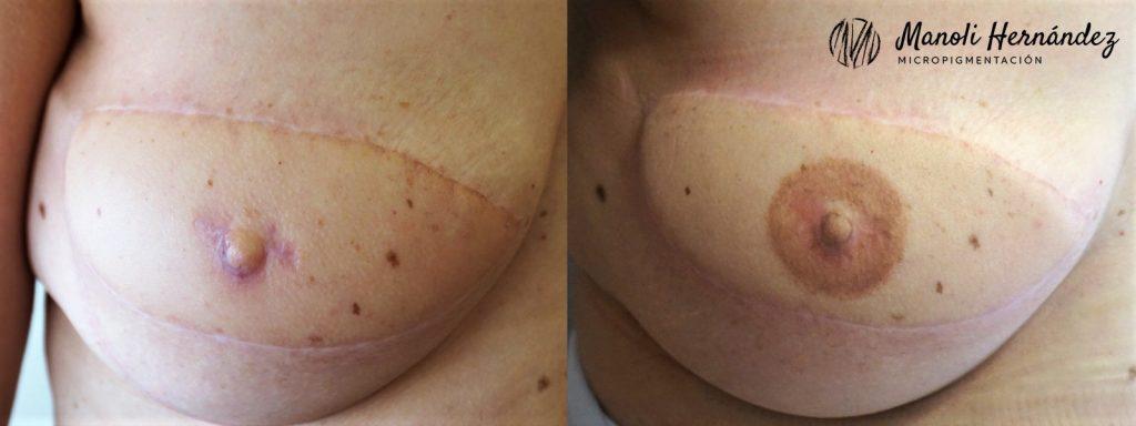 Antes y después de un tratamiento de micropigmentación paramédica, donde se ha realizado una reconstrucción de areola