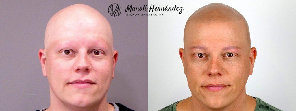 Tratamiento de micropigmentación capilar para tratar alopecia Universal