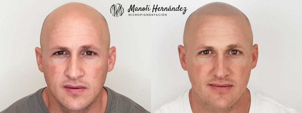 Antes y después de un tratamiento de micropigmentación capilar